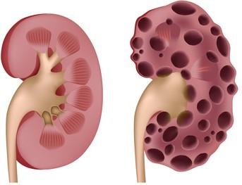 polyzystische nieren